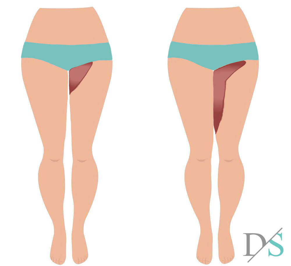 thigh lift surgery incisions