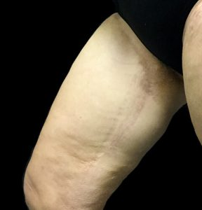 thigh reduction scars
