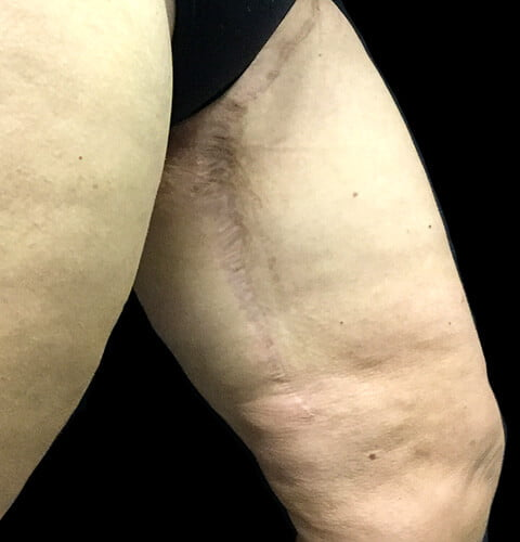 scars for thigh reduction