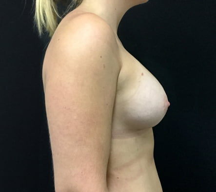 breast augmentation surgeon Brisbane and Ipswich
