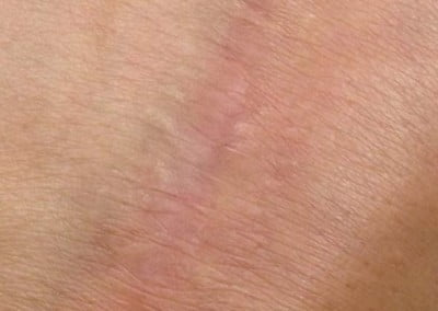 Dermapen after hand scar therapy