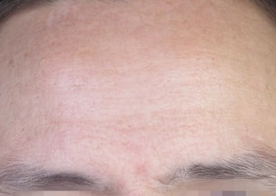 Dermapen after wrinke lines therapy
