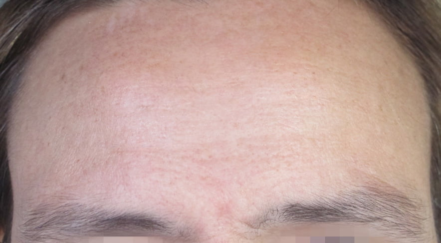 before and after derma pen