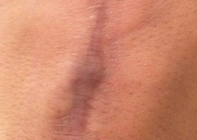 Dermapen before hand scar therapy