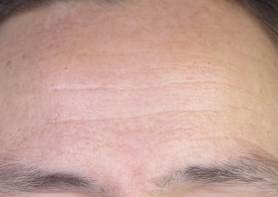 Dermapen before wrinke lines therapy