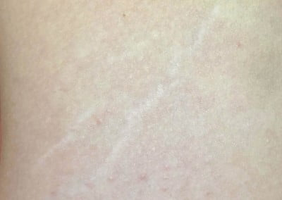 Dermapen micro skin needling before photo stretch marks