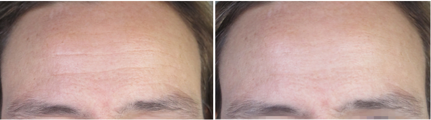 Wrinkles, lines and micro needling Dermapen