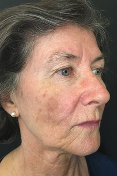 before one Fraxel treatment for sun damage and pigmentation