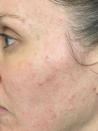 Fraxel for acne clinic