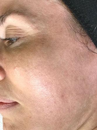 Acne clinic Brisbane