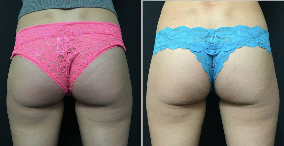 Does SculpSure work? Before and after photos