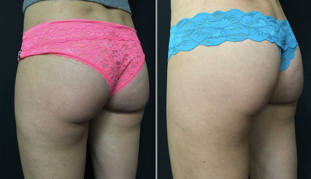 before and after SculpSure fat reduction