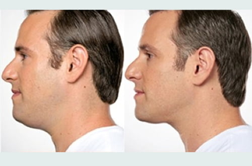 Under chin lipo double chin Brisbane and Ipswich