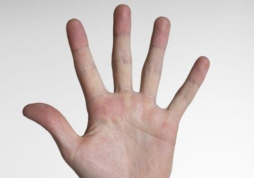 Hand sweat Botox treatment
