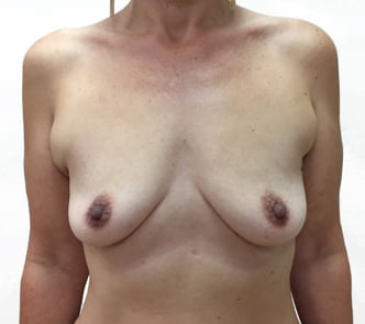 Breast augmentation Brisbane and Ipswich