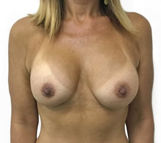 before and after photos Dr Sharp breast augmentation