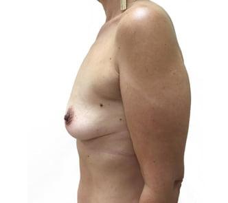 boob job Brisbane and Ipswich surgeon