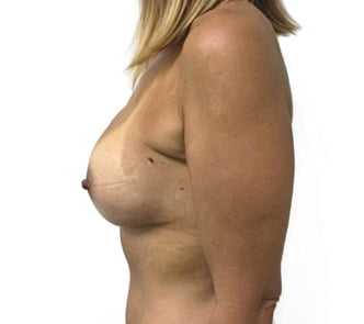 Brisbane breast augmentation surgeon Dr Sharp