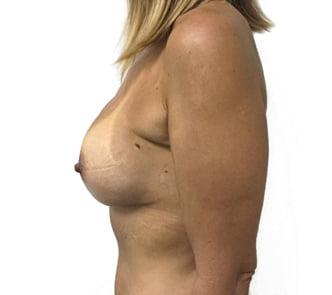 Brisbane breast augmentation surgeon Dr Sharp