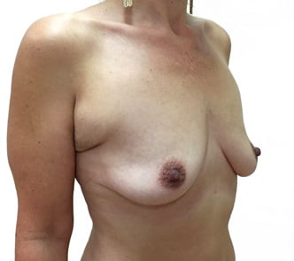 Breast augmentation photos Brisbane and Ipswich