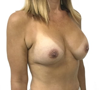 Ipswich before and after photos Dr Sharp breast augmentation