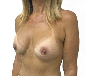 breast augmentation Brisbane photos