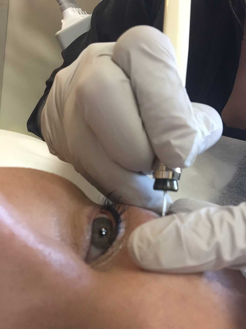 cosmetic tattoo