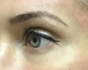 Brisbane Botox brow lift