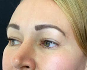 Brisbane clinic Botox brow lift