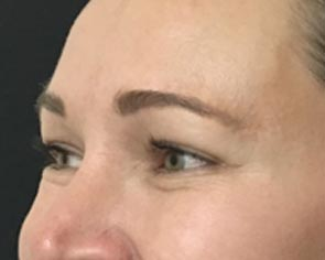 Botox Brow lift in Brisbane and Ipswich