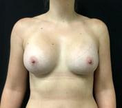 Dr David Sharp breast augmentation results photos