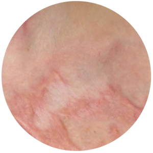 Scar Reduction Therapy | Non-Invasive | Dr  David Sharp