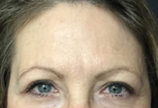 Brisbane clinic Botox forehead