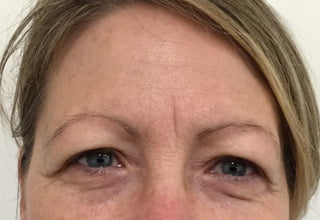 Botox frown lines in Brisbane and Ipswich
