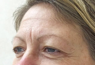 Crow's Feet Treatment | Cosmetic Wrinkle Injections