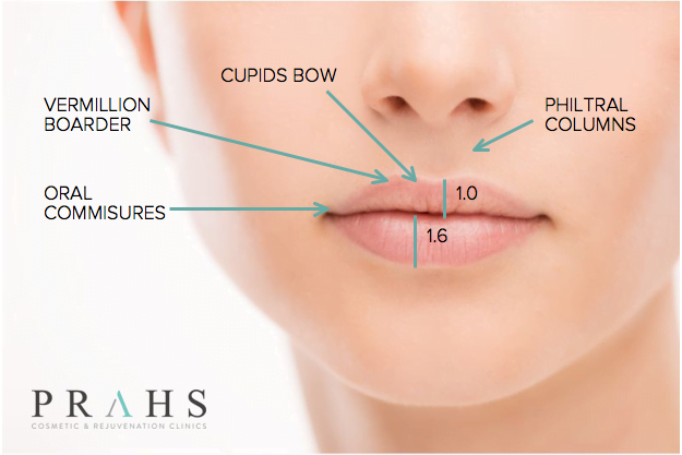 lip filler injections South Brisbane, East Brisbane and Ipswich