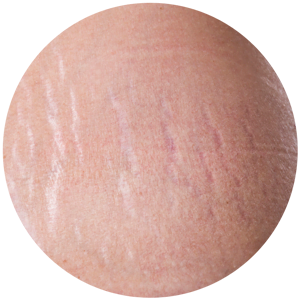 stretch mark treatment Brisbane and Ipswich