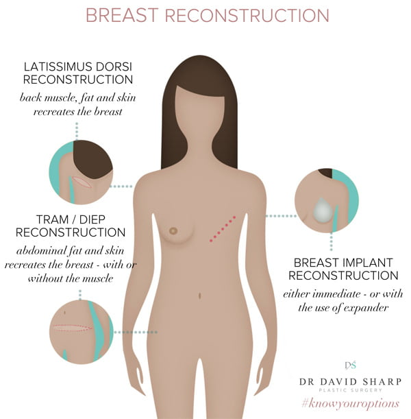 breast reconstruction using DIEP TRAM Latissimus Dorsi or implant