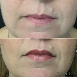 lip filler Juvederm Brisbane and Ipswich