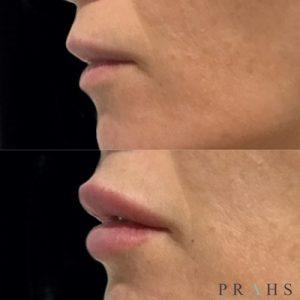 Brisbane lip filler injections