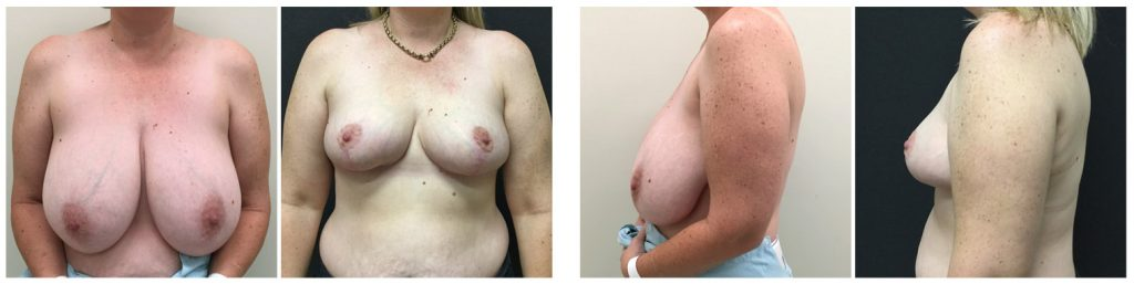 Dr Sharp breast reduction before and after