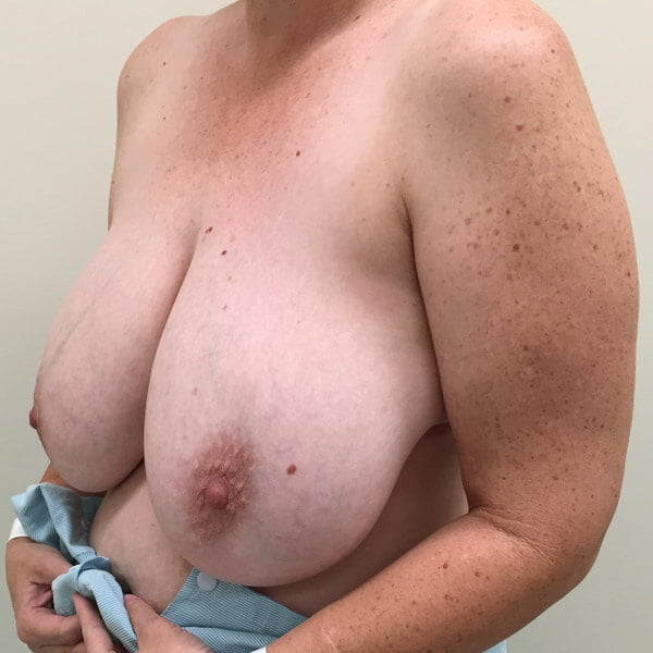 Review of breast reduction Brisbane and Ipswich