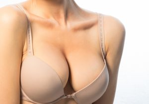 breast reduction for exercise problems