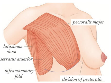 dual plane breast augmentation muscles