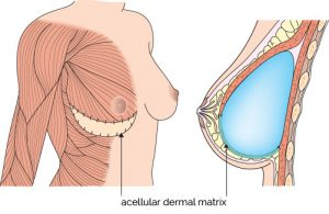 dermal matrix ADM breast implants