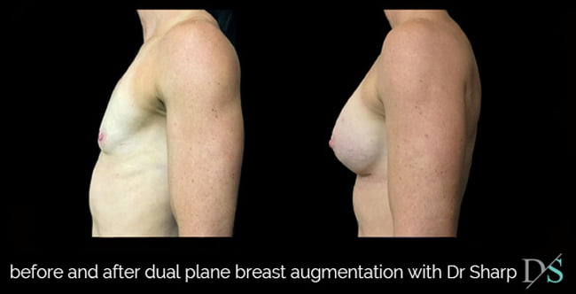 drooping breast augmentation dual plane technique photos