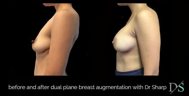 breast augmentation dual plane technique photos