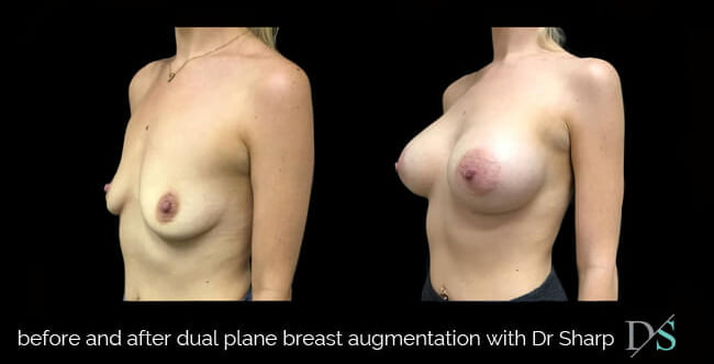 dual plane breast augmentation method explained