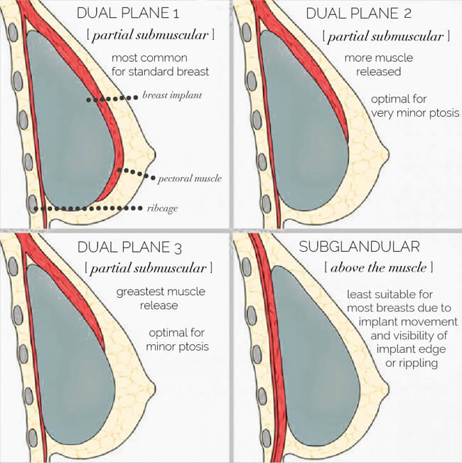 dual plane breast augmentation method