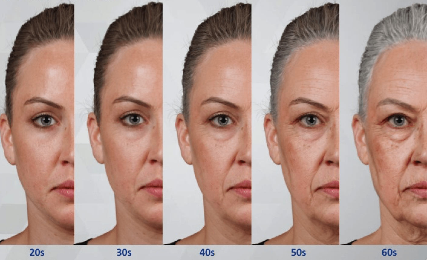 facelift surgery facial ageing